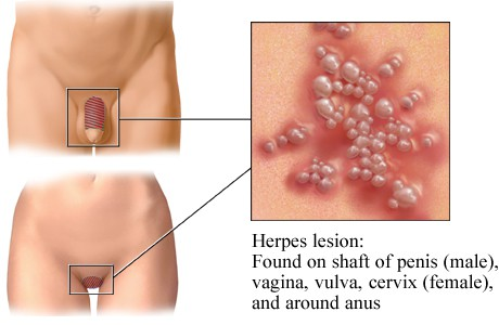 How Do Guys Know If They Have Herpes