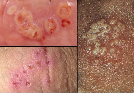 what are the symptoms of herpes